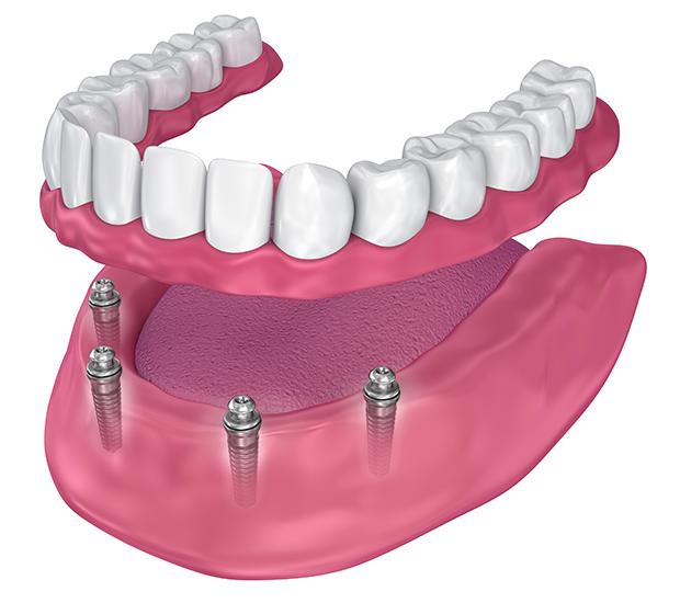Fairfield All-on-4 Implants