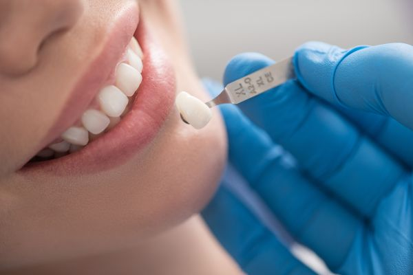 Reasons To Consider Getting Dental Veneers