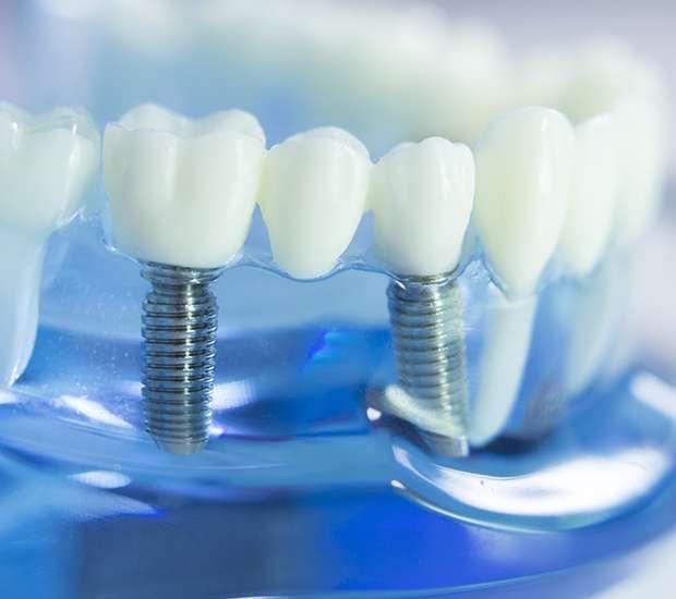 Fairfield Dental Implants