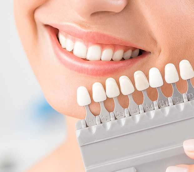 Fairfield Dental Veneers and Dental Laminates